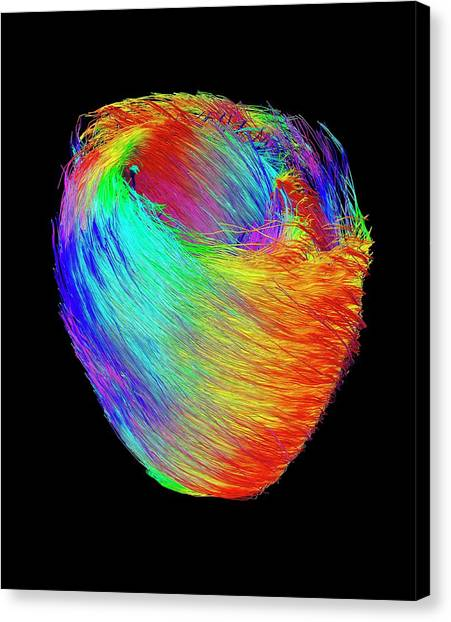 Histology Canvas Print - Heart Muscle Fibres by Ucl Cabi