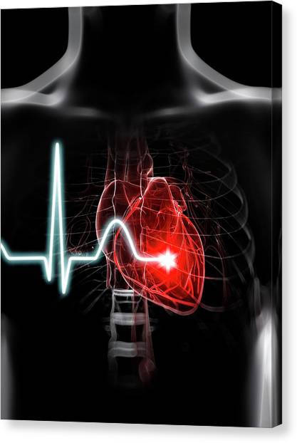 Heartbeat Canvas Print by Sciepro/science Photo Library