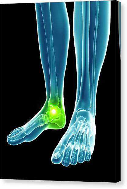 Ankles Canvas Print - Human Ankle Joint by Sebastian Kaulitzki