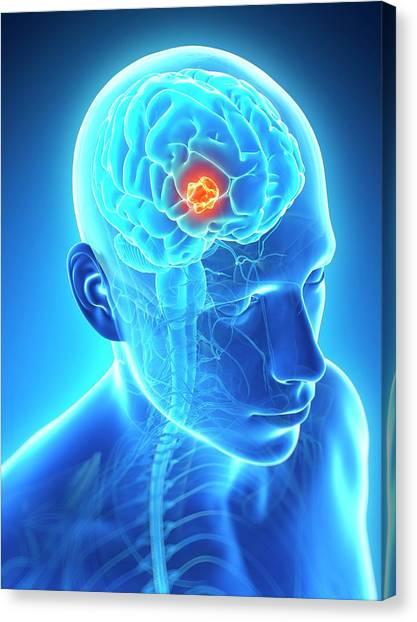 Neoplasm Canvas Print - Human Brain Tumor by Sebastian Kaulitzki