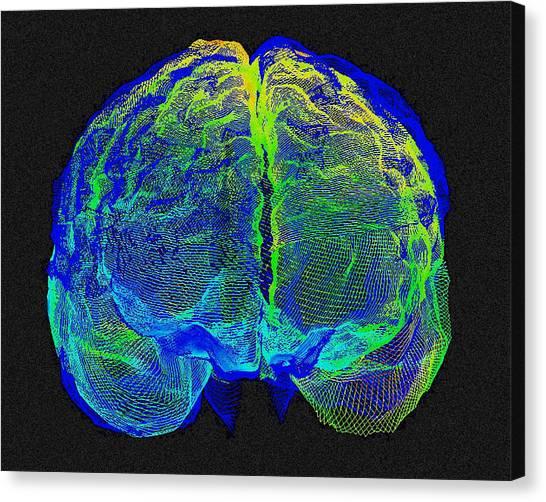 Ucla Canvas Print - Human Brain Variation by Arthur Togaucla