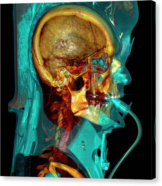 Unconscious Canvas Print - Intensive Care Patient by Antoine Rosset/science Photo Library