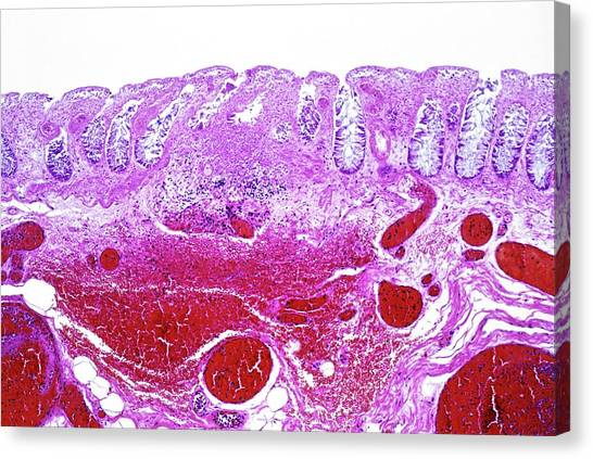 Intestinal Ischaemia Canvas Print by Microscape