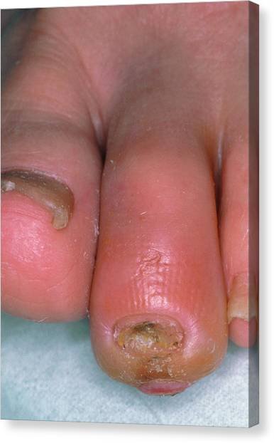 Diabetes Canvas Print - Ischaemic Toe In Patient With Diabetes by Science Photo Library