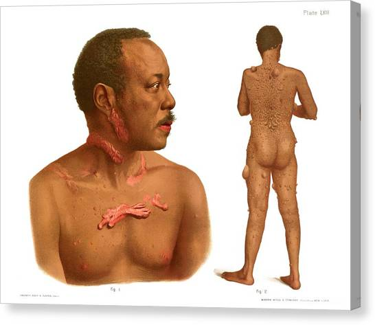 Keloids And Fibromas Canvas Print by Us National Library Of Medicine/science Photo Library