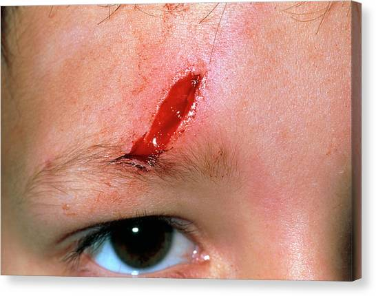 Laceration Above The Eye Of A 5 Year Old Boy Canvas Print by Dr P. Marazzi/science Photo Library