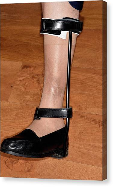 Steak Canvas Print - Leg Support In Osteoarthritis by Dr P. Marazzi/science Photo Library