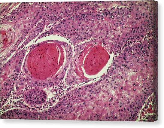 Light Micrograph Of Squamous Cell Carcinoma Canvas Print by Science Photo Library.