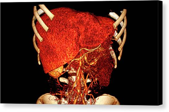 Liver Canvas Print by Antoine Rosset/science Photo Library