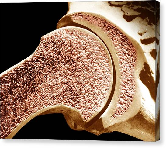 Longitudinal Section Of The Humerus. The Outer Portion Is Compact Bone And The Inner Portion Is Spongy Or Cancellous Bone. Canvas Print by Dr. Don Fawcett