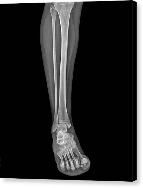 Ankles Canvas Print - Lower Leg And Foot by Zephyr/science Photo Library