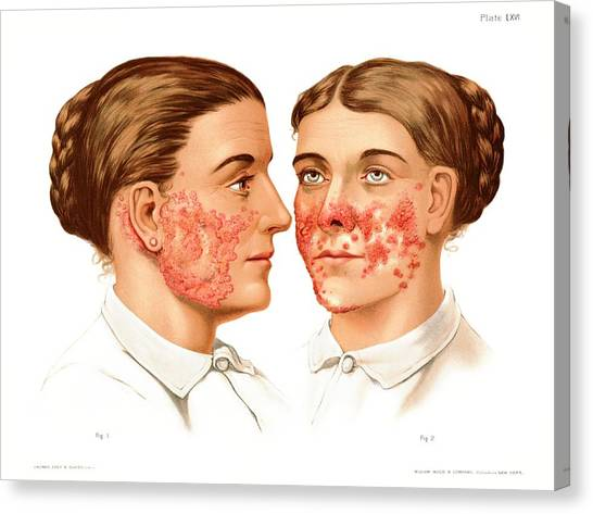Lupus Erythematosus And Vulgaris Canvas Print by Us National Library Of Medicine/science Photo Library