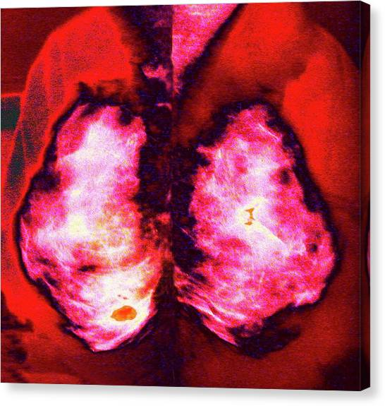 Breast Cancer Canvas Print - Mammogram by Larry Berman