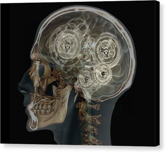 Mechanical Brain Canvas Print by Zephyr/science Photo Library