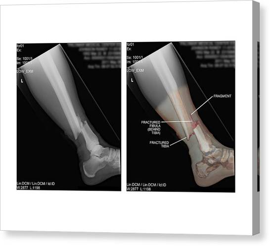 Rays Open Canvas Print - Open Fracture Of Tibia And Fibula by John T. Alesi