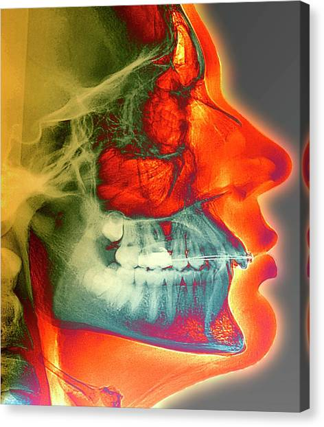 Braces Canvas Print - Orthodontic Brace X-ray by Zephyr/science Photo Library