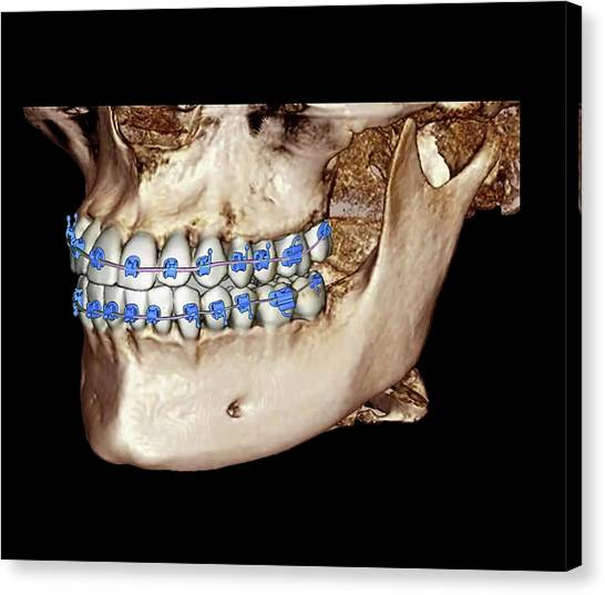 Braces Canvas Print - Orthodontic Braces by Zephyr/science Photo Library