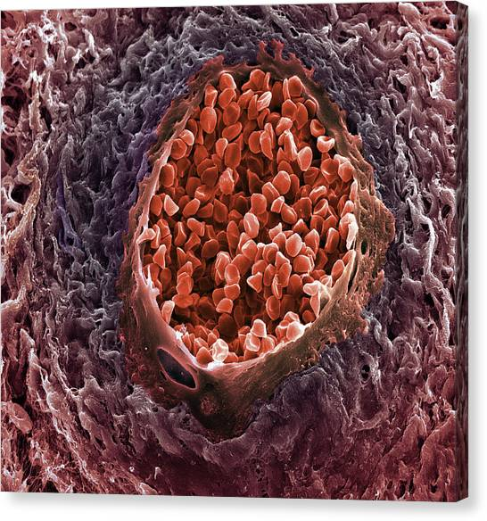 Ovarian Cancer Blood Vessel Canvas Print by Steve Gschmeissner