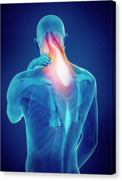 Person With Neck Pain Canvas Print by Sebastian Kaulitzki/science Photo Library