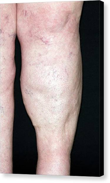 Chronic Canvas Print - Poor Blood Flow In The Leg by Dr P. Marazzi/science Photo Library