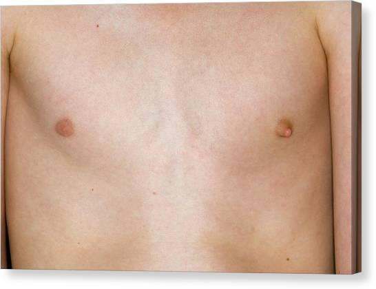 Nipples Canvas Print - Prominent Nipple In A Young Man by Dr P. Marazzi/science Photo Library