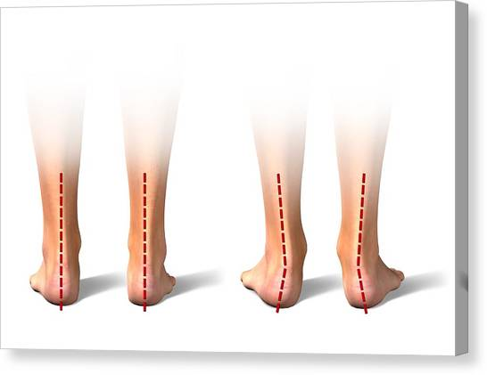 Pronation Of The Feet. Artwork Canvas Print by Science Photo Library