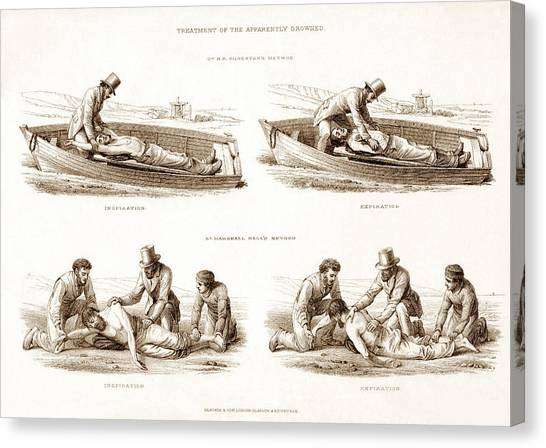 Drown Canvas Print - Resuscitation by Sheila Terry/science Photo Library