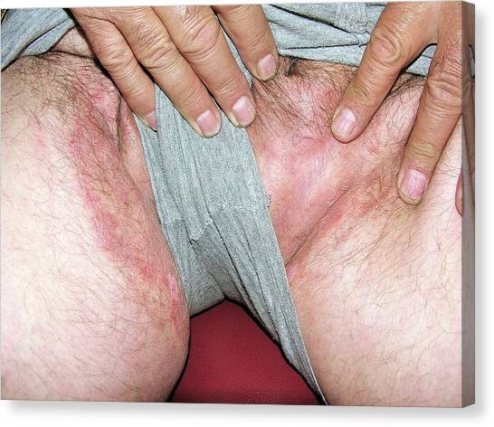 Groin Canvas Print - Ringworm Fungus On The Groin by Dr Harout Tanielian/science Photo Library