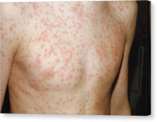 Rubella Rash Canvas Print by Pr. Ph. Franceschini/cnri/science Photo Library