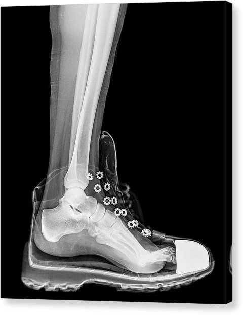 Ankles Canvas Print - Running Shoe X-ray by Photostock-israel