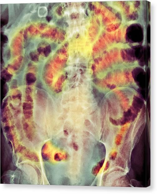 Small Bowel Obstruction, X-ray Canvas Print by Science Photo Library
