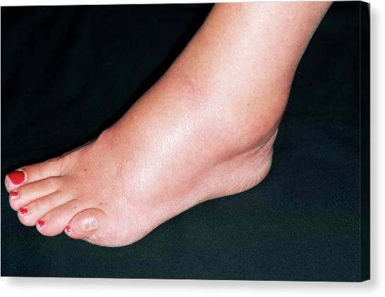 Ankles Canvas Print - Sprained Ankle by Dr P. Marazzi/science Photo Library