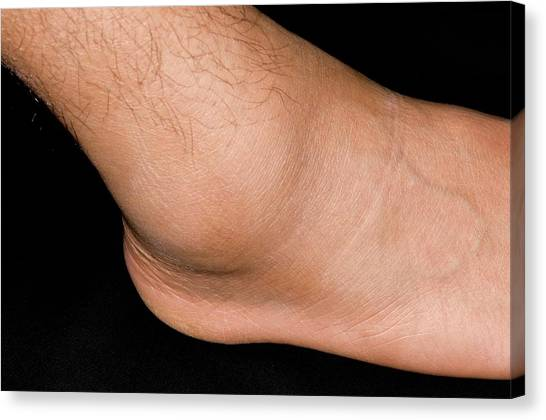 Ankles Canvas Print - Sprained Ankle Sport's Injury by Dr P. Marazzi/science Photo Library