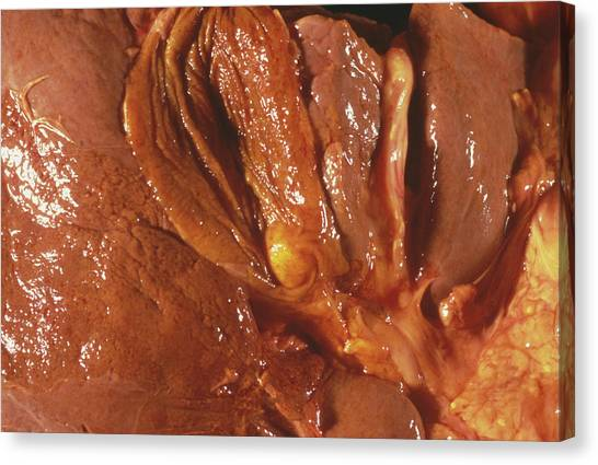Neoplasm Canvas Print - Spreading Pancreas Cancer by Cnri/science Photo Library
