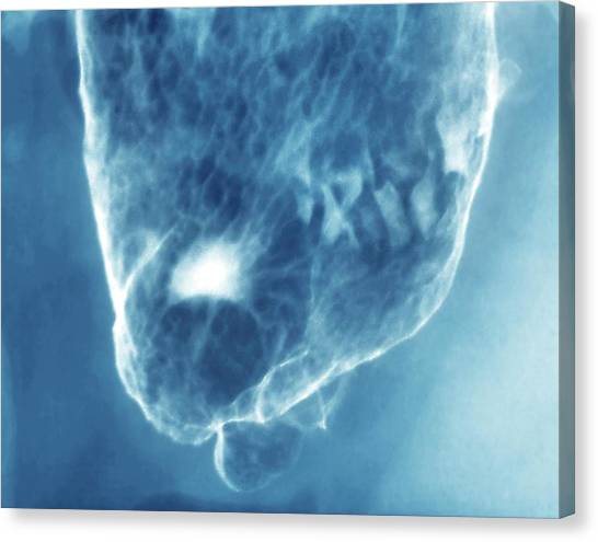 Swallows Canvas Print - Stomach Gastric Ulcer by Zephyr/science Photo Library