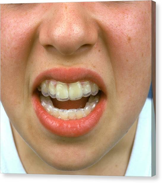 Braces Canvas Print - Tooth Brace by Alex Bartel/science Photo Library