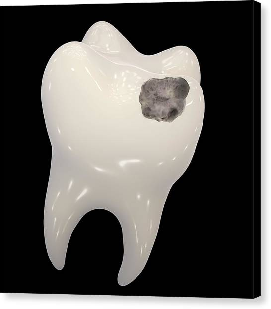 Cavity Canvas Print - Tooth Decay by Kateryna Kon/science Photo Library