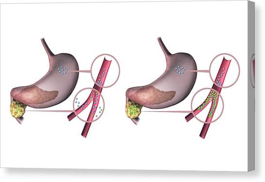 Diabetes Canvas Print - Type 1 And 2 Diabetes by Gunilla Elam/science Photo Library