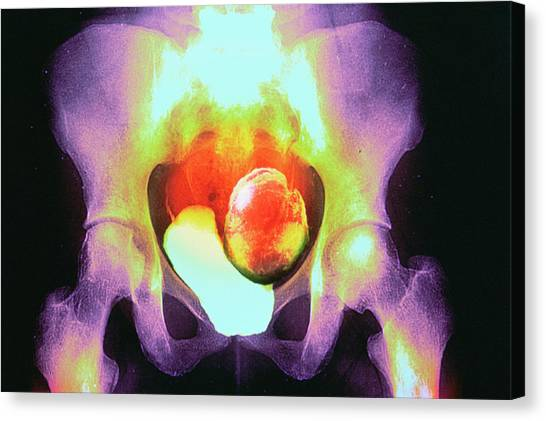 Uterine Fibroid Canvas Print by Gjlp/cnri/science Photo Library