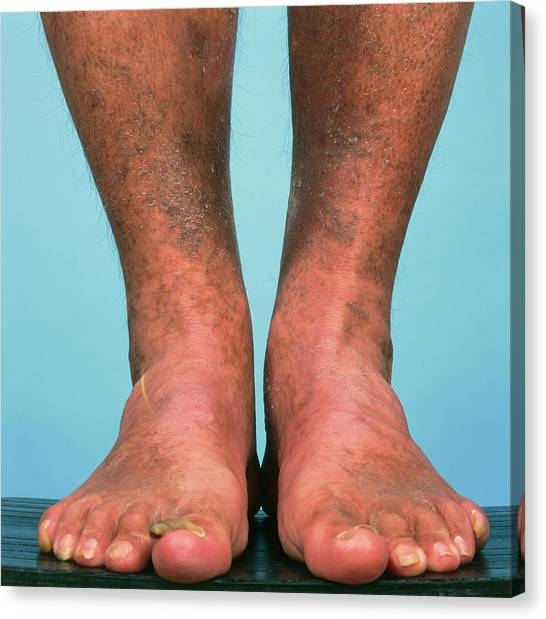 Varicose Vein Bruising Canvas Print by Alex Bartel/science Photo Library