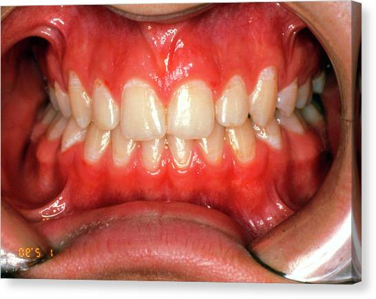Braces Canvas Print - View Of Teeth After Treatment With Dental Braces by Dr Peter Gordon/science Photo Library