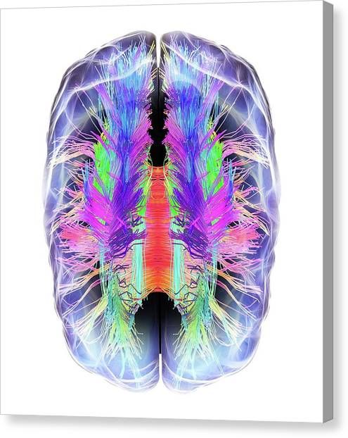 Cut-outs Canvas Print - White Matter Fibres And Brain by Alfred Pasieka