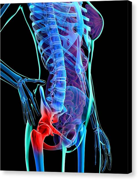 Hip Pain, Conceptual Artwork Canvas Print by Roger Harris