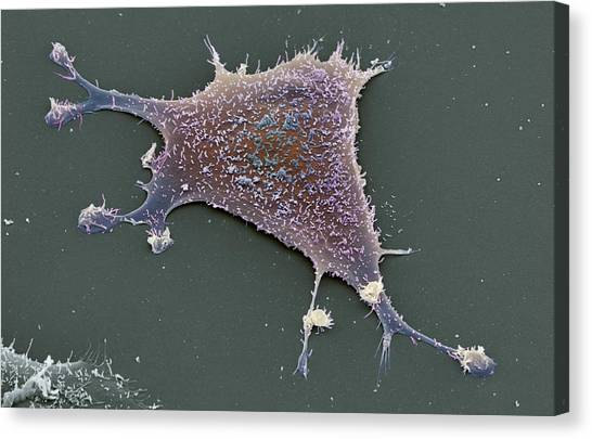 Sarcoma Cancer Cell Canvas Print by Steve Gschmeissner