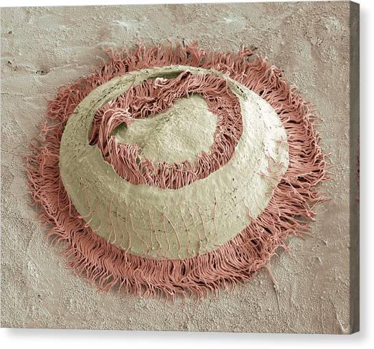 Trichodina Parasite, Sem Canvas Print by Steve Gschmeissner