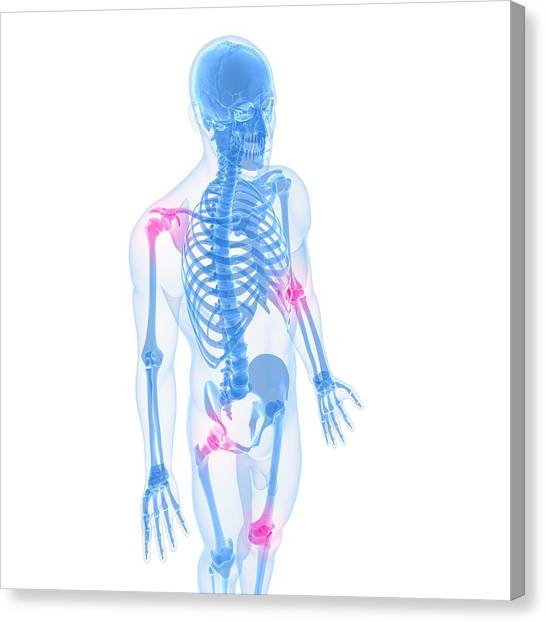 Joint Pain, Conceptual Artwork Canvas Print by Sciepro
