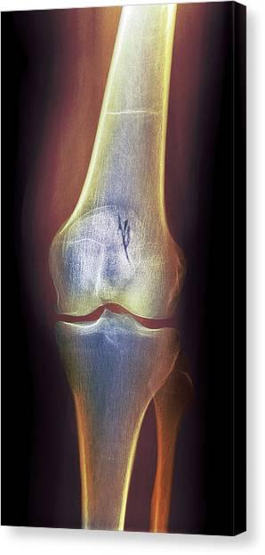 Arthritic Knee, X-ray Canvas Print by Du Cane Medical Imaging Ltd