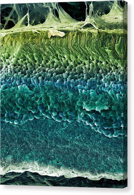 Retina, Sem Canvas Print by Steve Gschmeissner