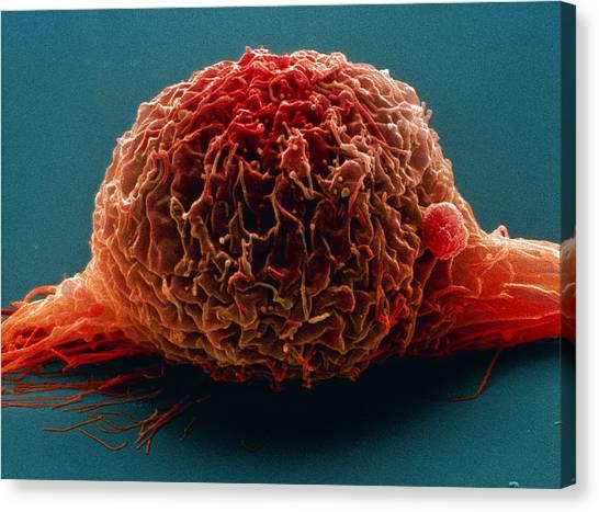 Bladder Cancer Cell, Sem Canvas Print by Steve Gschmeissner