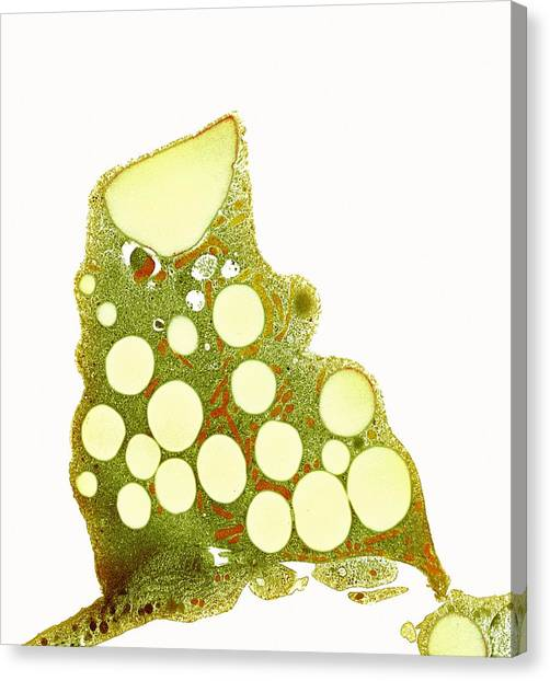 Fat Cells, Tem Canvas Print by